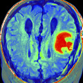 Tumores: El virus que mata o cura