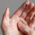 Gérmenes e higiene